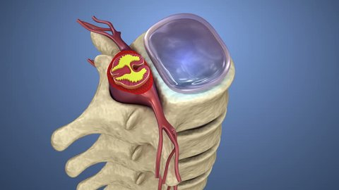 Spinal cord under pressure of bulging disc, 3d animation