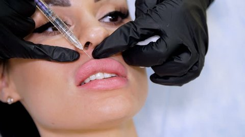 medical office, doctor in black sterile gloves, injecting hyaluronic acid into the patient lips. Procedure for increasing the volume of lips, correction of lips shape.