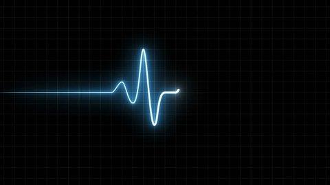 EKG 60 BPM Loop Screen, Blue w/ Grid. Heart rate monitor / electrocardiogram (EKG or ECG) loop beeping at 60 beats per minute for screen savers or computer monitor displays, animated at 60fps.