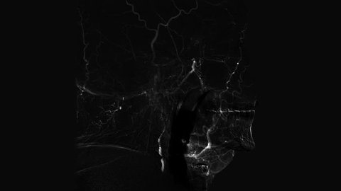 Black and white Cerebral angiogram. Medical examination. Brain vessels angiography. X-ray scan monitoring of head blood vessels.