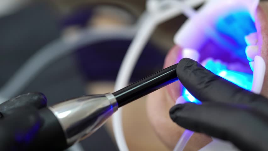 Patient in dental clinic and uv lamp on chair | Shutterstock HD Video #1013336615