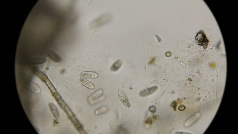 colony of Paramecium Infusoria, among which are ready to divide, under the microscope