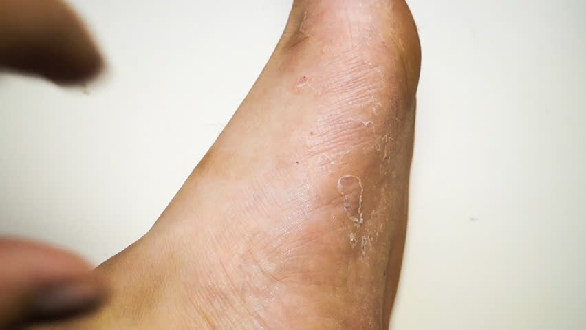 Hands scratching their feet with fungus | Shutterstock HD Video #1014351395