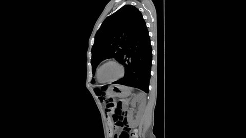 Coronal CT Chest with of abdomen side view