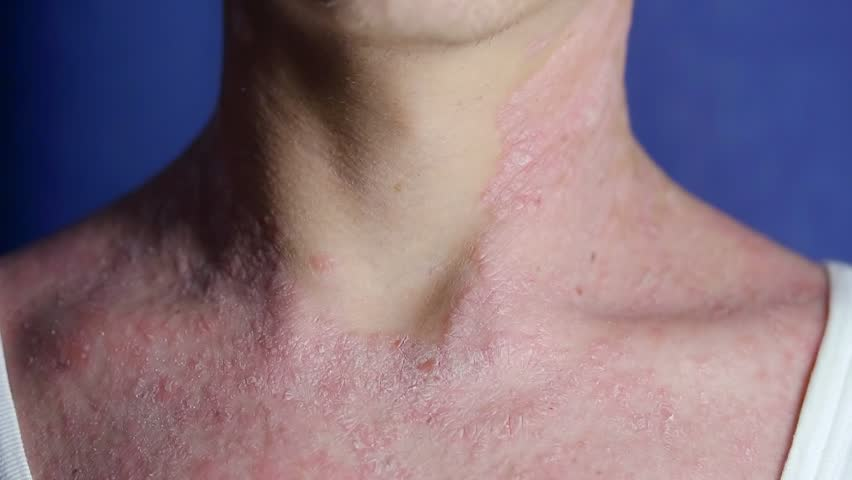 Sick man with psoriasis is scratching his dry itchy skin on neck, close-up view   Shutterstock HD Video #1016490145