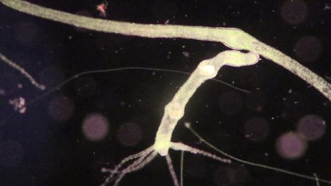 Hydra is a genus of small, fresh-water animals of the phylum Cnidaria and class Hydrozoa under the microscope for education.