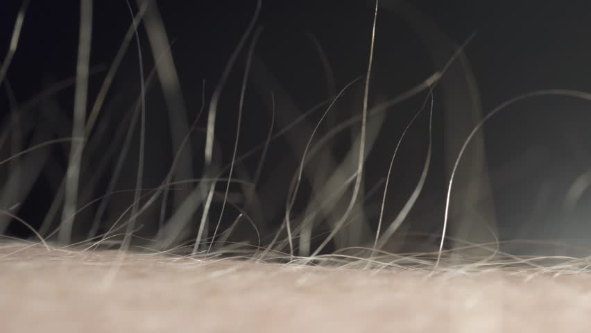 The hair on the skin rises from cold or fear or anger or energy. Close-up macro. | Shutterstock HD Video #1025044295