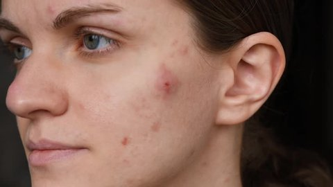 Beautiful girl with not smooth skin crushes red acne on her face