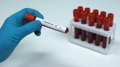 Negative C diphtheriae test, doctor showing blood sample lab research healthcare