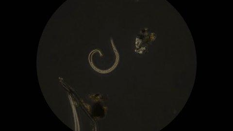 Soil nematode as seen under microscope