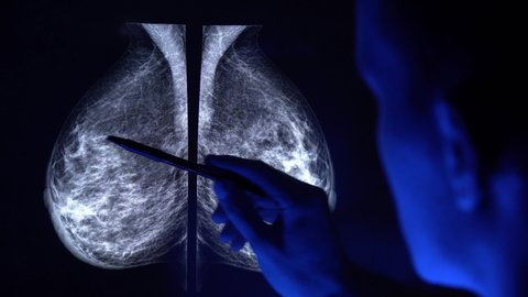 Doctor with a pan checking mammogram x-ray. Mammography diagnostic to prevent breast cancer. 4k close up video.