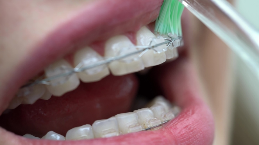 Woman patient with braces on her teeth in a dental clinic. Her brackets are cleaning with a help of a green toothbrush. Macro video recording. | Shutterstock HD Video #1033187975