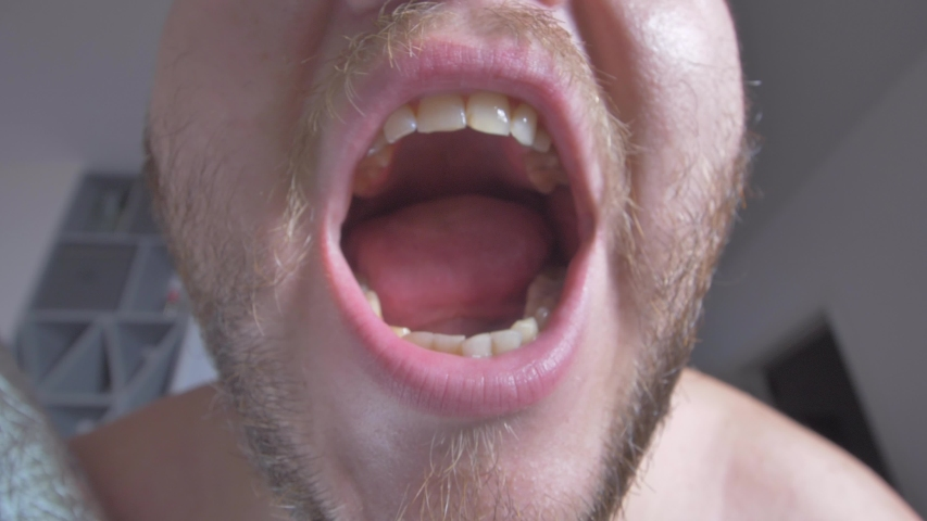 Open Man's Mouth With Bad Teeth, Crooked Teeth   Shutterstock HD Video #1033795715