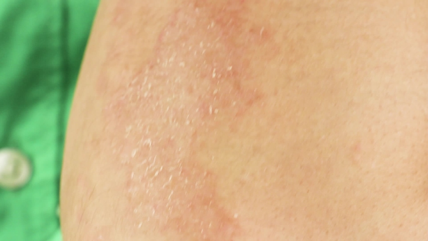 Human scratches his arm with red allergic reaction, redness and peeling psoriasis on elbow, seasonal skin problem, close-up macro  | Shutterstock HD Video #1034408555