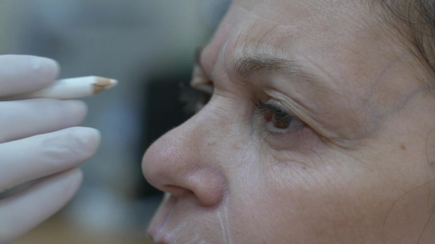 Cosmetic clinic, woman getting a Hyaluronic acid injection it is used to reduce the appearance of fine lines and wrinkles, facial folds, and to create structure, framework and volume of the lips | Shutterstock HD Video #1038761705