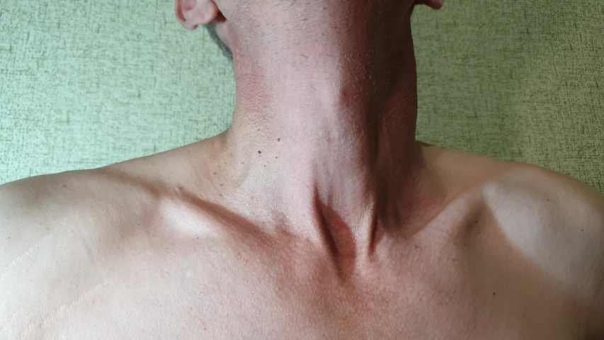 Pain in the neck. A man rubs his neck. Neck disease. | Shutterstock HD Video #1039045235