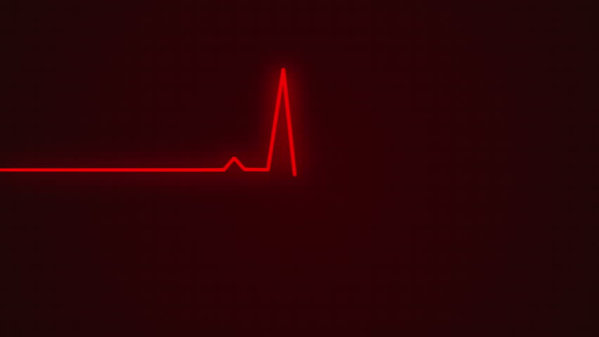 Ecg cardiogram monitor with pulsing red line to determine your health with beep sound   Shutterstock HD Video #10751945