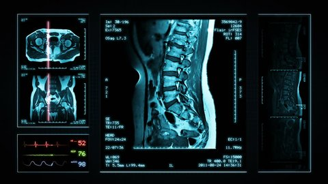 Pelvis MRI Scan. Blue. 4 videos in 1 file. Animation showing top, front, lateral view and ECG display. Each video is loopable. Medical Background. More options in my portfolio.