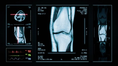 Knee MRI Scan. Blue. 4 videos in 1 file. Animation showing top, front, lateral view and ECG display. Each video is loopable. Medical Background. More options in my portfolio.