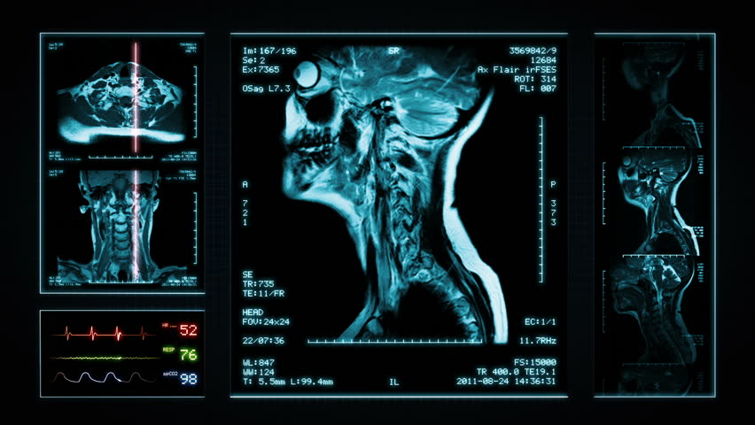 Neck MRI Scan. Blue. 3 videos in 1 file. Animation showing top, front, lateral view and ECG display. Each video is loopable. Medical Background. More options in my portfolio. | Shutterstock HD Video #11748347