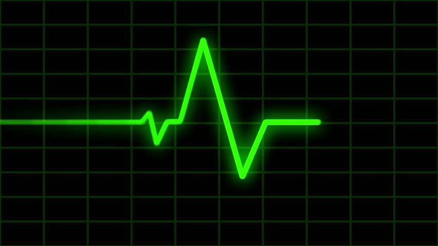 Seamless Loop Features A Green Electronic Display Measuring Heart Activity.    HD Stock Footage Clip