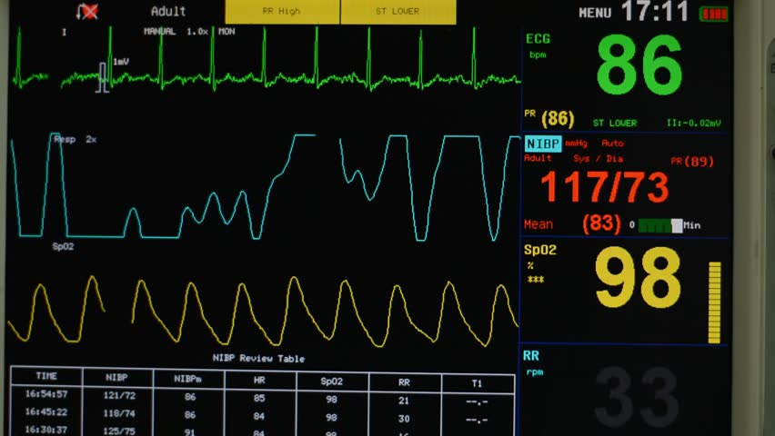 ICU hospital patient monitor flashes vital signs.