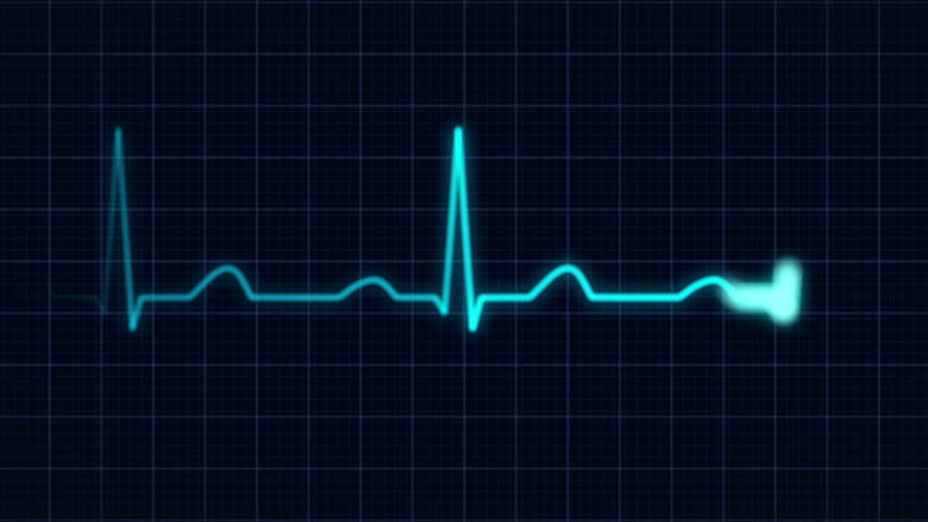 zooming in on a blue heartbeat curve, full hd,