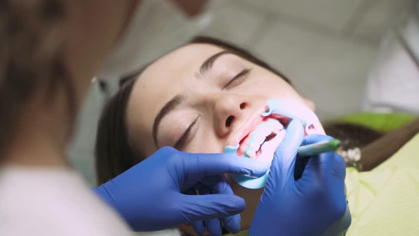 Kết quả hình ảnh cho bite in the dentist