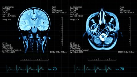 Two top view mri brain scan pictures animated on medical display with heart beat and additional medical data