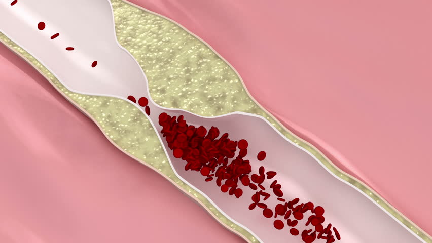 Coronary atherosclerosis disease