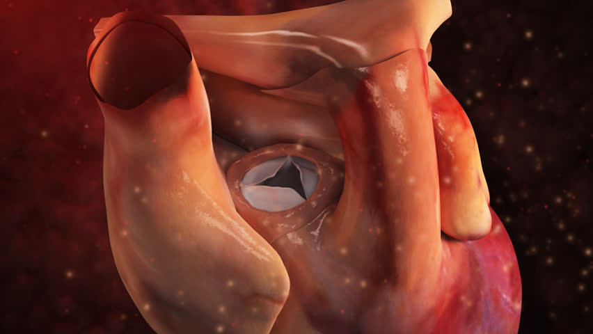 Zoom in to view human  aortic valve of heart and removal of  three-leafed incompetent leaky endocarditis aortic valve in 3D CG animal animated model  - HD stock footage clip