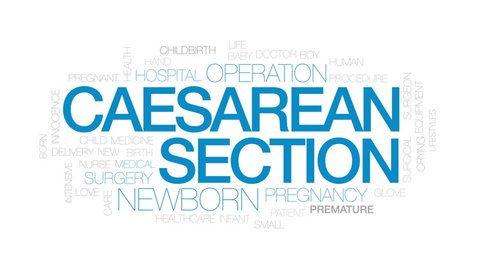 Caesarean section animated word cloud, text design animation. Kinetic typography.