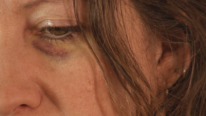 Black Eye and Tear Sad Abused Woman   Shutterstock HD Video #3130012