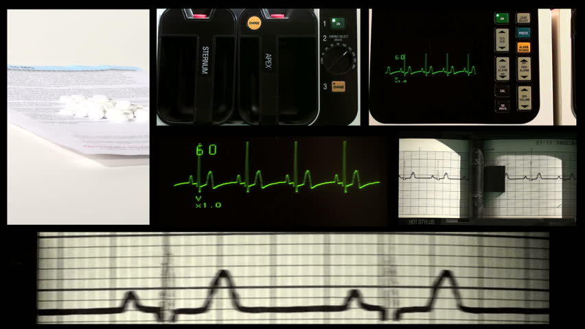 EKG Medical Emergency Montage - HD