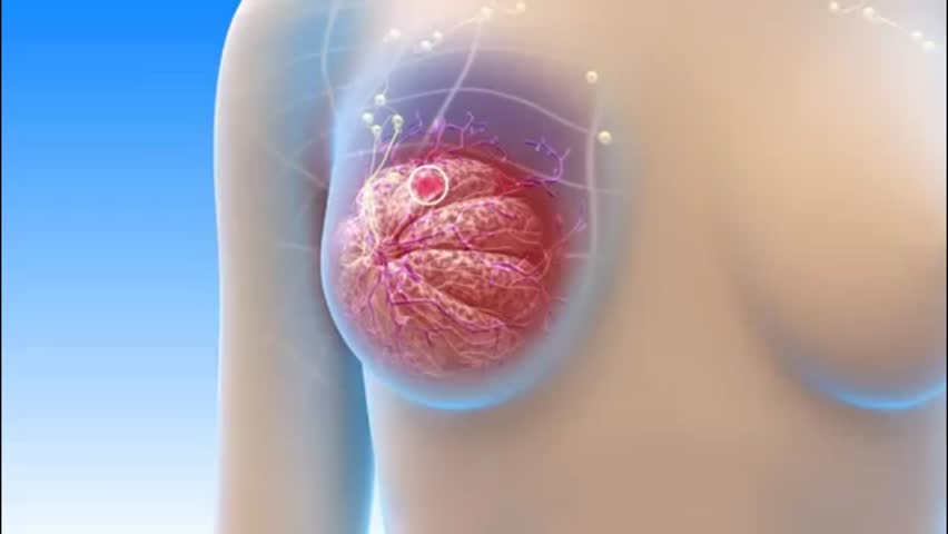 Breast Cancer - 3D Medical Animation
