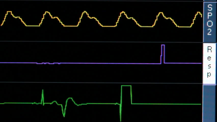 Wavy lines on vital signs monitor, close up, flatline as patient dies. 1080p