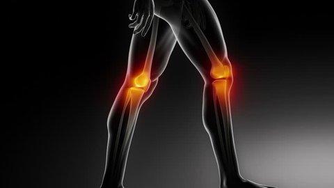Walking man knee medical scan