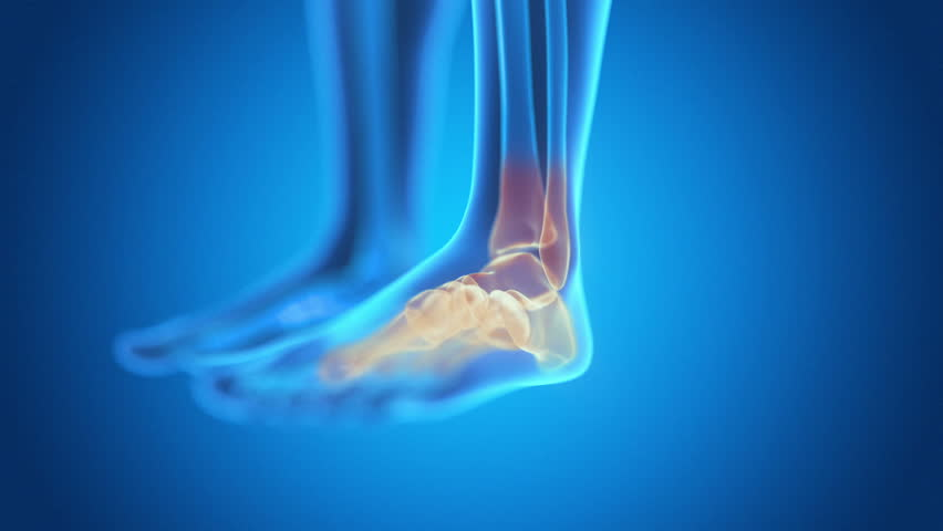 x-ray style - medical 3d animation of a male having acute pain in the ankle