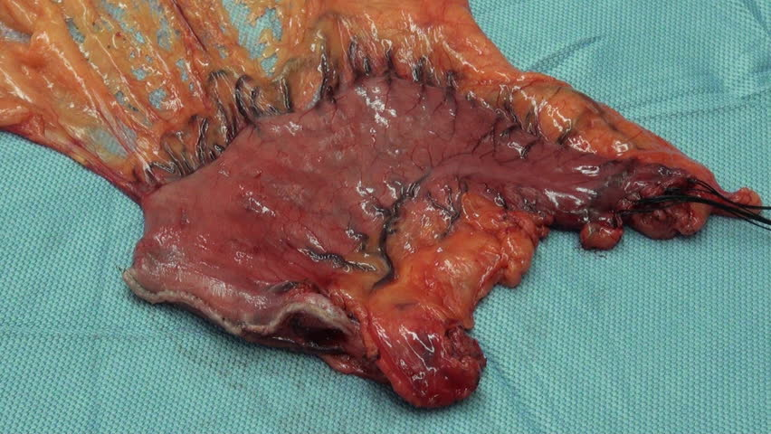 Total Gastrectomy Surgery For Stomach Cancer Stock