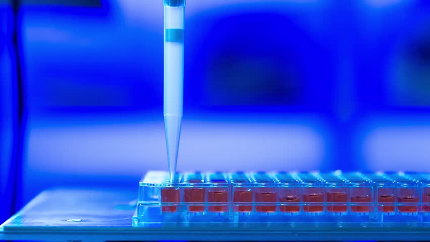 DNA sequence analysis of the Ebola virus. PCR technology