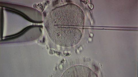 IVF, in vitro fertilisation through a microscope, MEDICINE