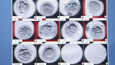 Human Embryos Development on Lab Monitor, IVF