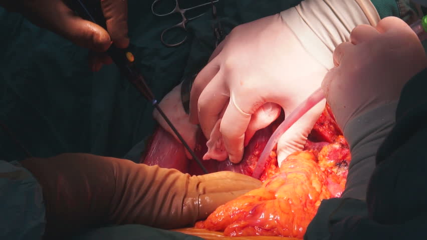 liver transplant, disinfection of medical scar after surgery, Close up of Medical Operation, laparoscopic surgery #9820475